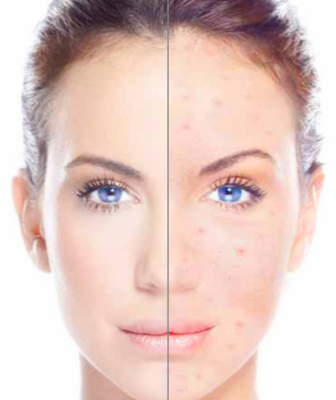 Acne Control London Laser Clinic 1