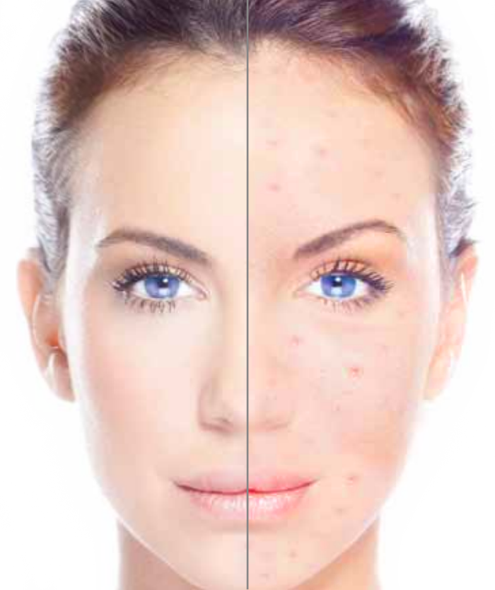 Acne Control London Laser Clinic