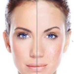 Vein Removal London Laser Clinic 1