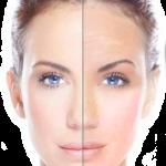 Skin Rejuvenation London Laser Clinic