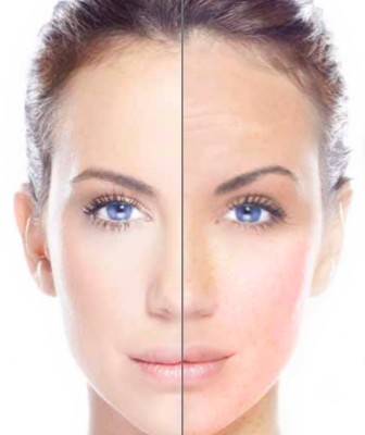 Skin Rejuvenation London Laser Clinic