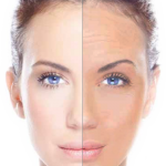 Laser Skin Tightening London Laser Clinic
