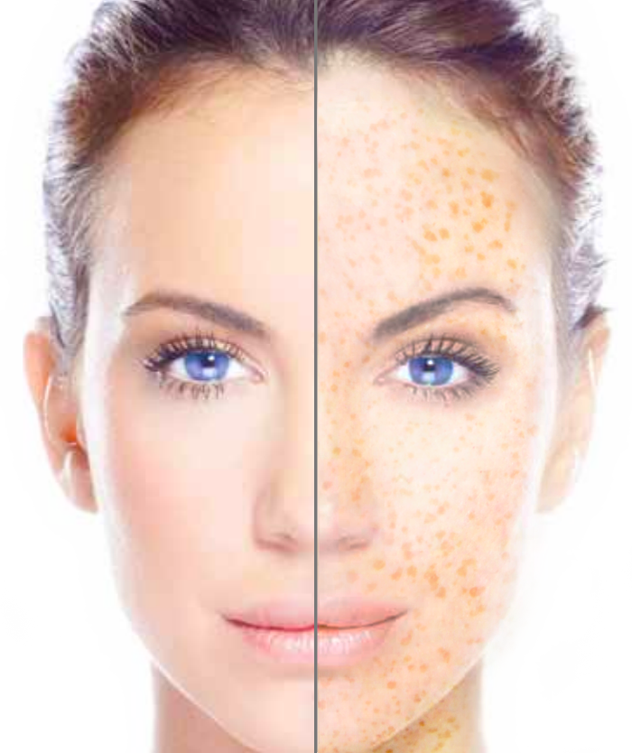 Sunspots & Freckle Removal London Laser Clinic 3