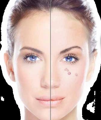 Facial wart remover