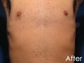 Men's Hair Removal London Laser Clinic 1