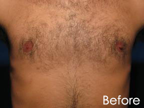 Men's Hair Removal London Laser Clinic 2