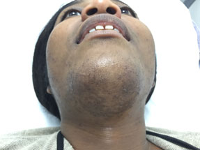 Ingrown Hairs London Laser Clinic 1
