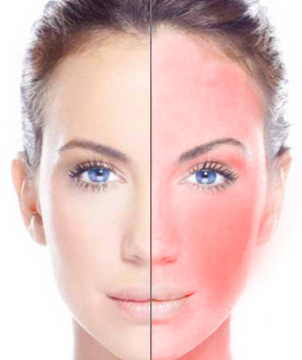 About Rosacea Leicester Laser Clinic