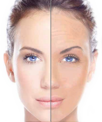 Image result for skin-tightening