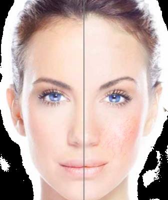 vein-removal