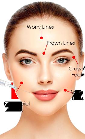 Facial dermal fillers leicester laser clinic solutioingenieria Gallery