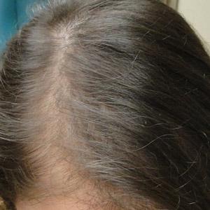 Plasma Hair Regrowth London Laser Clinic 1