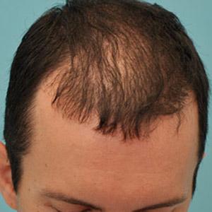 Plasma Hair Regrowth London Laser Clinic 4