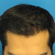 Plasma Hair Regrowth London Laser Clinic 5