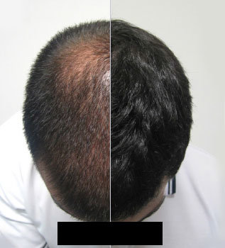Plasma Hair Regrowth Leicester Laser Clinic